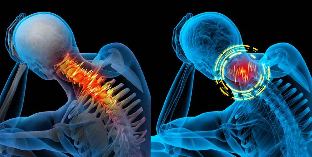 56 % of the US adult population has had neck pain in the last 6 months (1). People who experience neck pain usually have other conditions that  accompany it. Torticollis, TMJ, Vertigo, Headaches, and cognitive fog are other symptoms that many times are associated with chronic neck pain.